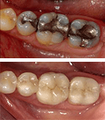 All-Porcelain Crowns at Our Everett Dental Office