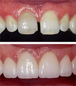 Porcelain Veneers at Our Everett Dentist Office