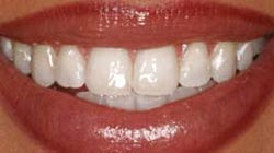 Teeth Whitening in Everett